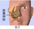 後鼻神経切断手術+粘膜下下鼻甲介骨切除術