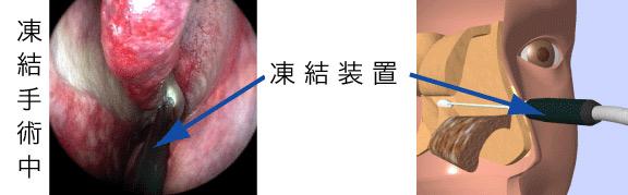 後鼻神経凍結手術