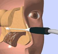 下甲介粘膜焼灼術 (アルゴンガス凝固術) +鼻内後鼻神経凍結術
