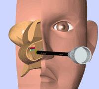 粘膜下下甲介骨切除術+粘膜下後鼻神経凍結術