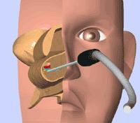 粘膜下下甲介骨切除術+後鼻神経切除術