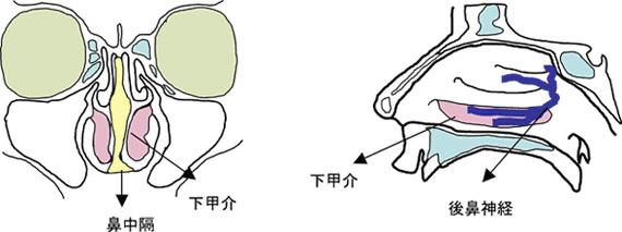 レーザー手術 後鼻神経凍結手術