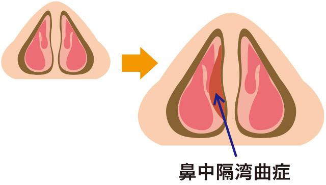 鼻中隔弯曲症