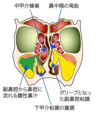 慢性 鼻炎 と は