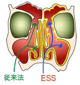 内視鏡下副鼻腔手術