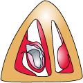 下甲介骨の両側で粘膜を剥離