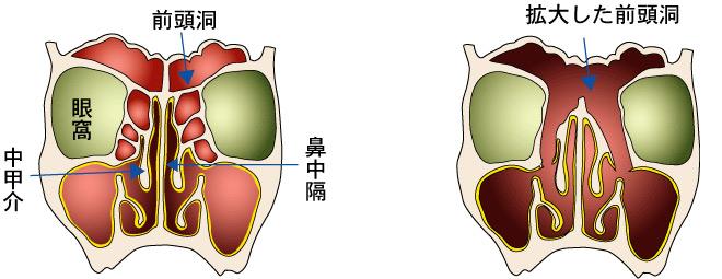 拡大前頭洞手術