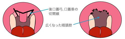 レーザーによる口蓋垂口蓋形成術