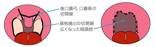 口蓋垂軟口蓋咽頭形成術